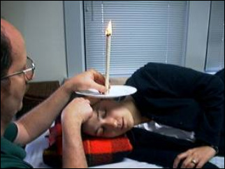 Ear Candling: What is it -- and is it safe?