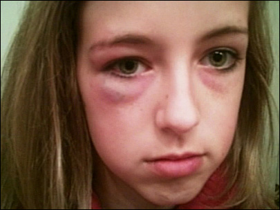 Washington girl brutally beaten by older girls in taped attack