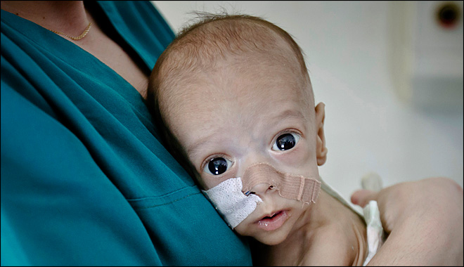 Offers of help come too late to save Baby Andrei