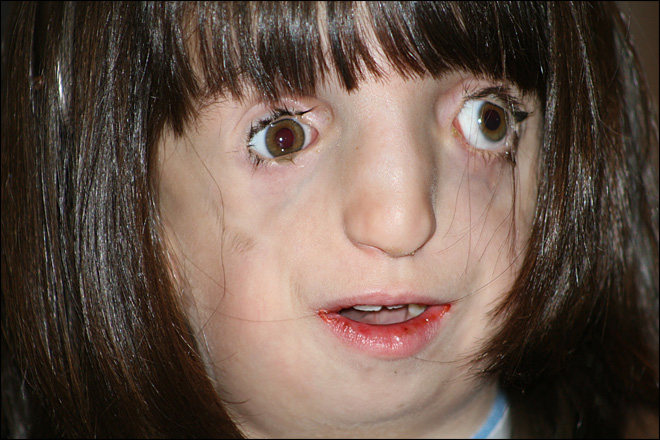 Girl with deformed face learns to navigate world