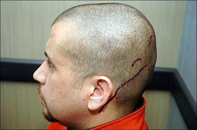 Evidence: Zimmerman bloodied, marijuana in Trayvon's blood