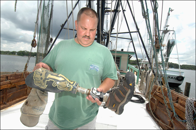 Prosthetic leg lost at sea, returned to owner