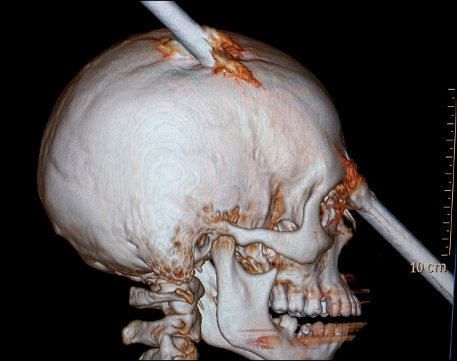Construction worker survives iron bar piercing skull