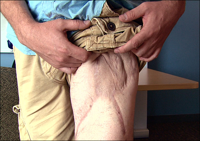 Lab-grown body parts, extreme surgery heal wounded troops