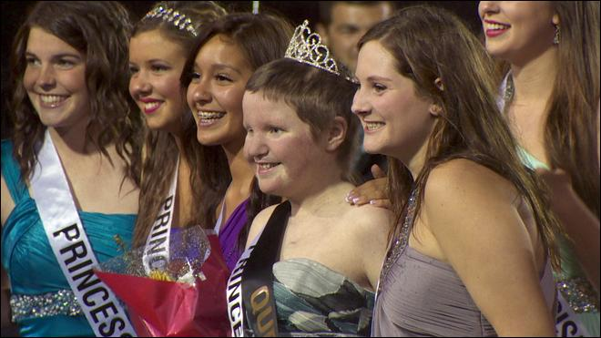 Students crown freshman with cancer as homecoming queen