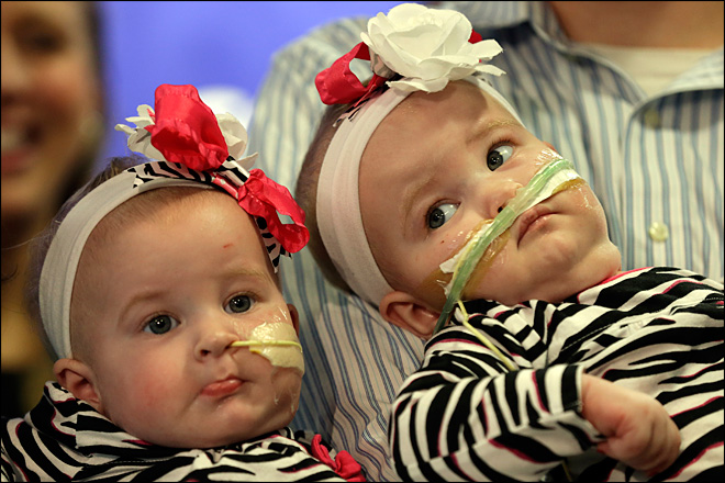 Once-conjoined N.Y. twins make debut at hospital