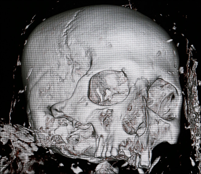 U.S. museum unwrapping mummy&#39;s story with CT scan