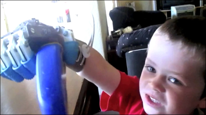 Born without fingers, robot hand helps boy