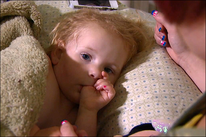Toddler hospitalized with flesh-eating bacteria