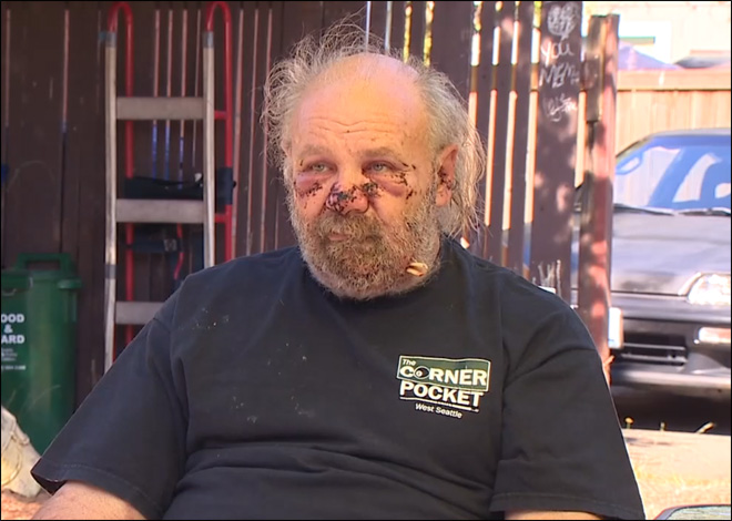 Washington dog attack survivor: 'He wasn't gonna have an easy kill'
