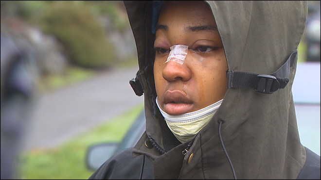 Glasses help save teen shot in face during drive-by
