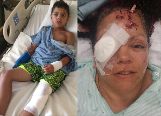 8-year-old boy, grandmother survive vicious otter attack