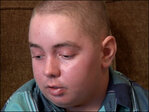 Boy fights for change in face of rare, debilitating disease