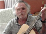 Face-chewing victim recovering, strumming guitar
