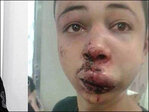Palestinian-American teen beaten in Mideast returns to Florida