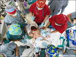 Houston surgeons separate 10-month-old conjoined twin girls