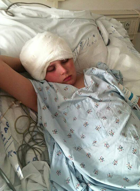 James Dahl recovering from radical brain surgery (8)