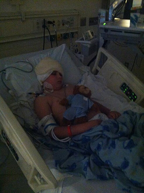 James Dahl recovering from radical brain surgery (6)