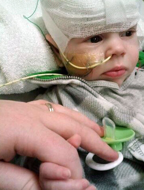 Feeding tube gets wrapped around baby's neck