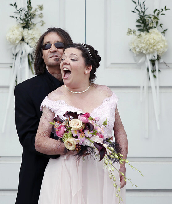 APTOPIX Face Transplant Wedding