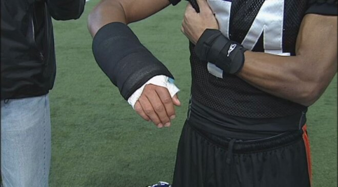 Jordan Poyer playing with a cast