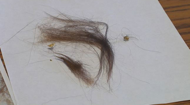 Bigfoot believer shares hairs (1)