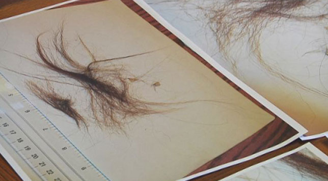 Bigfoot believer shares hairs (4)
