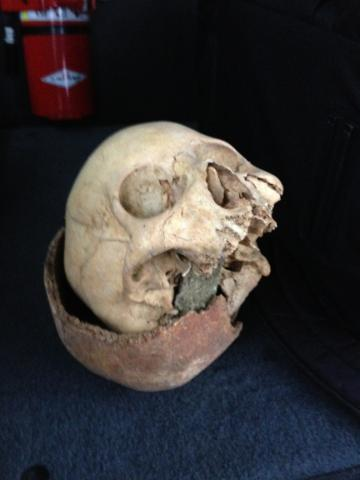 Skulls found in box at recycling center