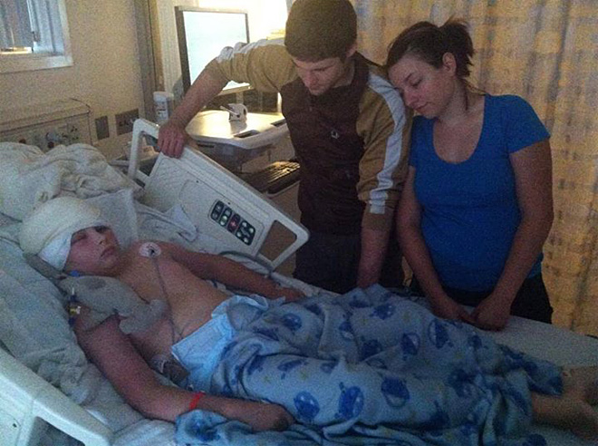 James Dahl recovering from radical brain surgery (4)