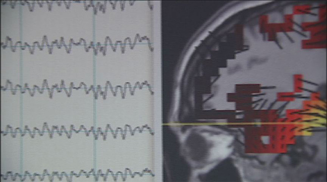 Local brain scan company goes public on stock market (5)