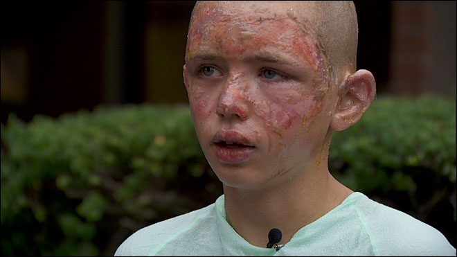 Boy, 12, rescues grandmother from burning home